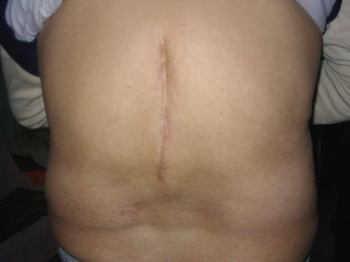 Photo of practitioner Qing Yan's back, showing the six-inch scar.